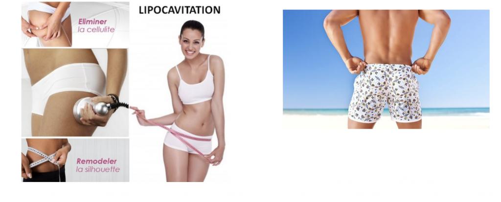 Lipocavitation